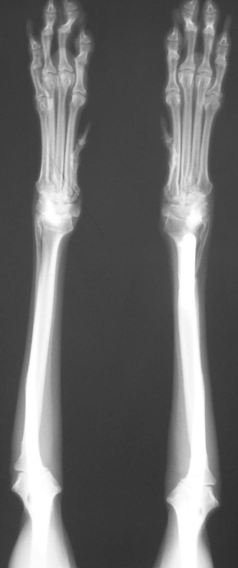 3788555 Radial Ulnar fracture AP post