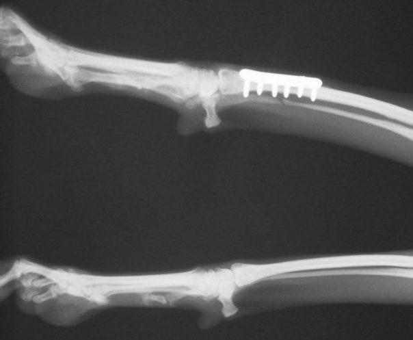3788556 Radial Ulnar fracture RL post