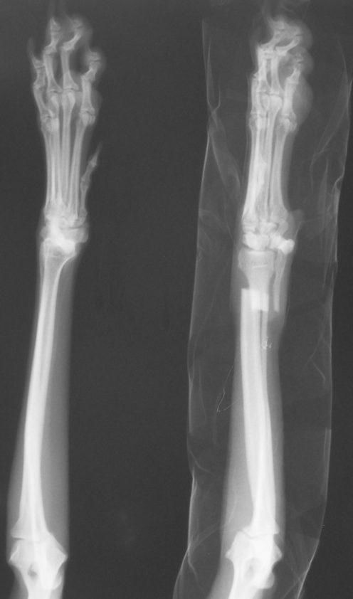3788557 Radial Ulnar fracture AP pre